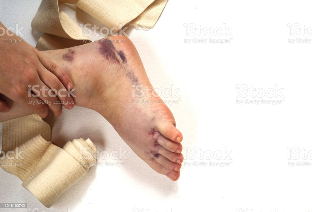 ankle injury with dislocation and sprains, tight bandage with elastic...