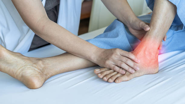 Ankle pain from instability, arthritis, gout, tendonitis, fracture, nerve compression (tarsal tunnel syndrome), infection and poor structural alignment of leg or foot in ageing patient with doctor stock photo