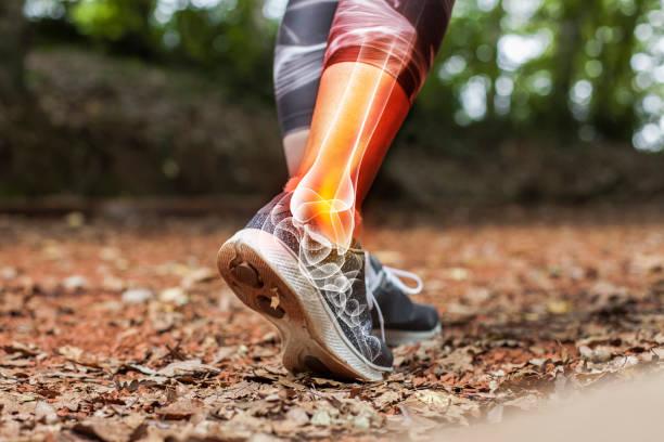 dor do tornozelo em detalhe-conceito dos ferimentos dos esportes - ortopedia - fotografias e filmes do acervo