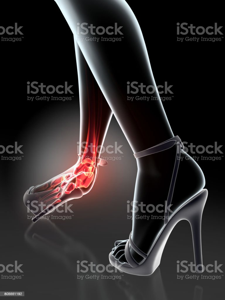 Ankle Painful Skeleton Xray Stock Photo & More Pictures of Anatomy ...