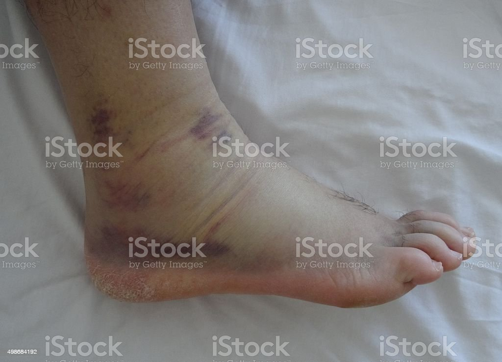 Ankle Sprain stock photo