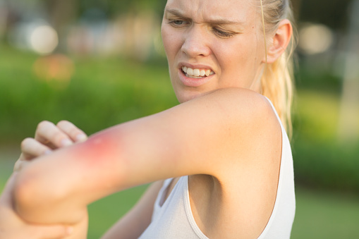 Irritated caucasian female person with redness on her arm from an insect bite at the park on a summer day. She looks in pain and scratching.