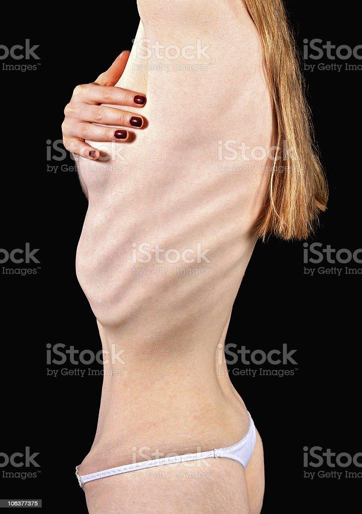 Anorexia royalty-free stock photo