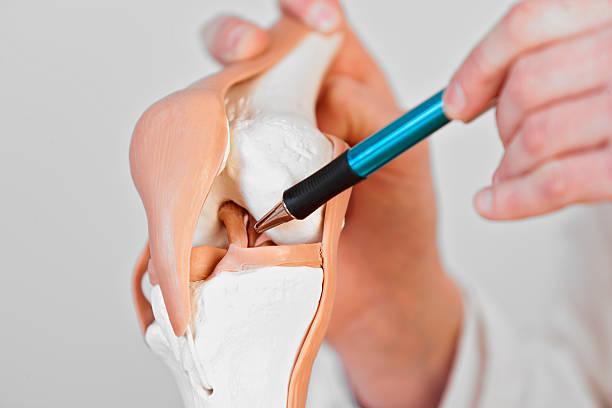 legamento crociato anteriore - menisco foto e immagini stock