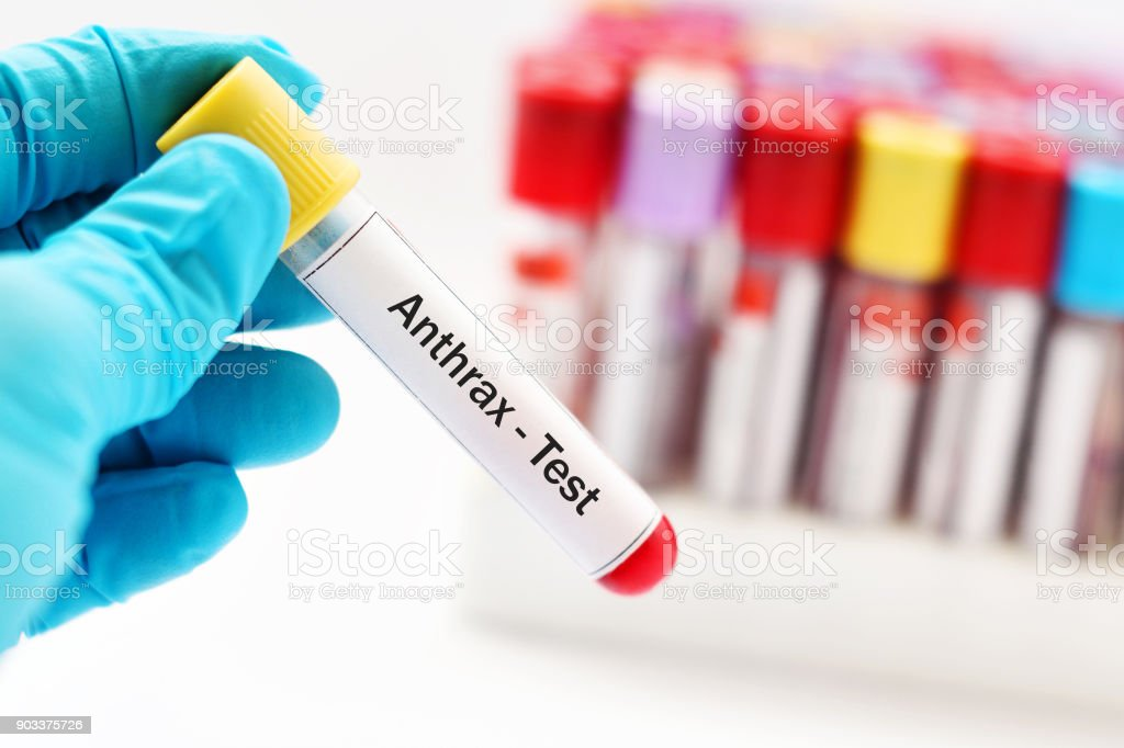 Anthrax test stock photo