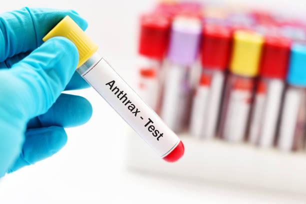 anthrax test - antrace foto e immagini stock