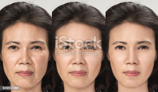 istock Anti Aging process, Asian woman face skin with anti-aging procedures, rejuvenation, lifting, tightening of facial skin, restoration of youthful skin anti-wrinkle. Old and young concept. 949507388