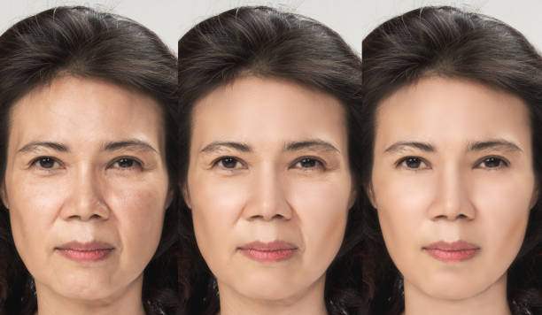 Anti Aging process, Asian woman face skin with anti-aging procedures, rejuvenation, lifting, tightening of facial skin, restoration of youthful skin anti-wrinkle. Old and young concept. Anti Aging process, Asian woman face skin with anti-aging procedures, rejuvenation, lifting, tightening of facial skin, restoration of youthful skin anti-wrinkle. Old and young concept. antiaging stock pictures, royalty-free photos & images