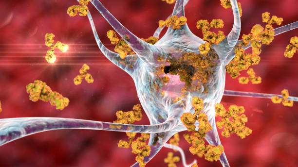 Antibodies attacking neuron stock photo