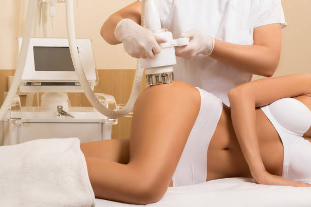Anticellulite massage or figure correction procedure Woman during anticellulite massage or figure correction procedure beauty treatment stock pictures, royalty-free photos & images