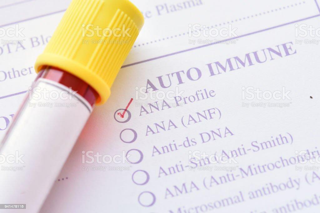 Antinuclear antibody (ANA) test stock photo