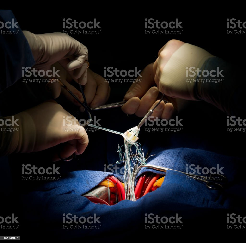 Aortic Valve Replacement Heart Surgery stock photo