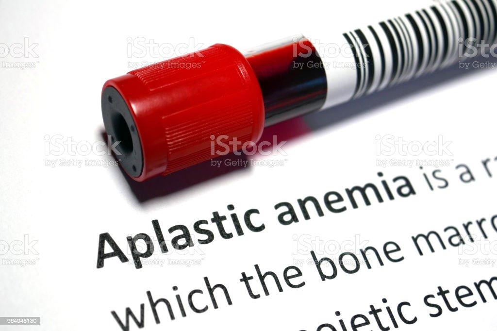Aplastic anaemia - Royalty-free Analyzing Stock Photo