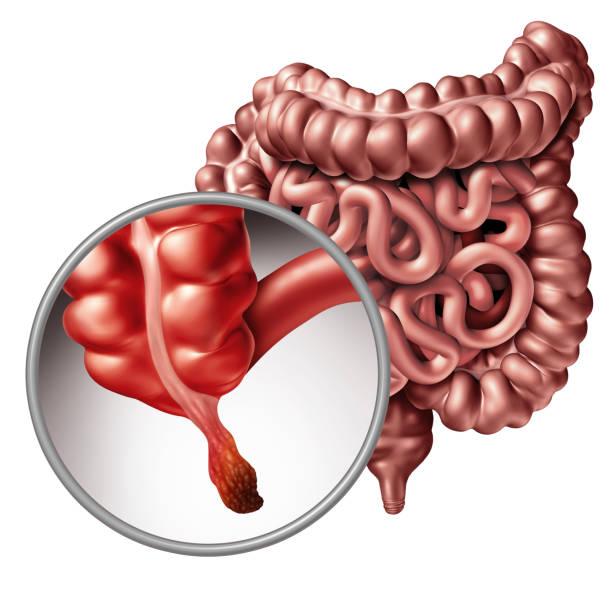 Appendicitis stock photo