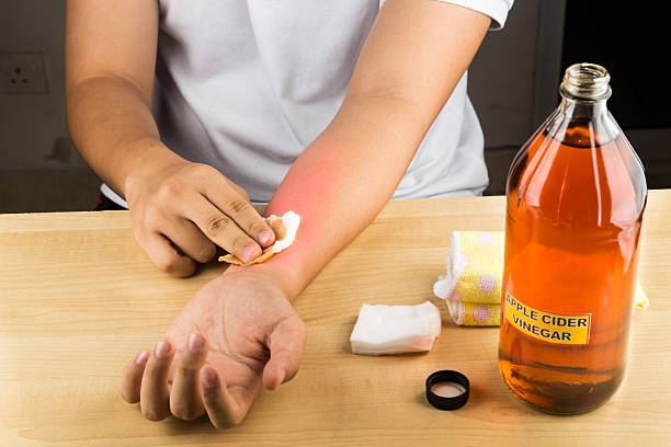 Apple cider vinegar natural remedy for itch, fungal, bruises, burns stock photo