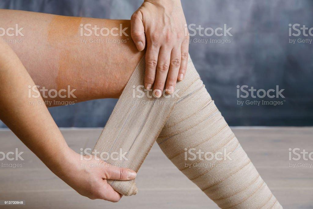 Application of elastic compression bandage stock photo