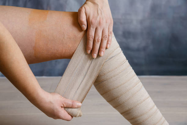 application of elastic compression bandage - medical dressing stock pictures, royalty-free photos & images