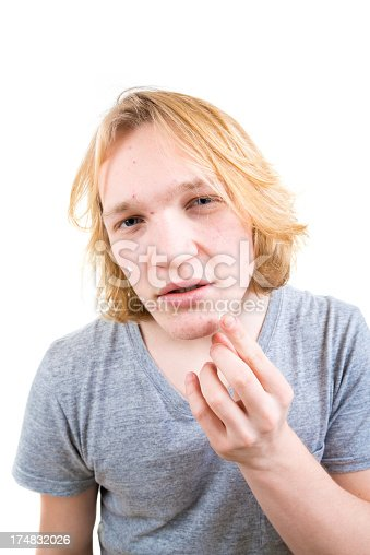 istock Applying anti-acne cream 174832026