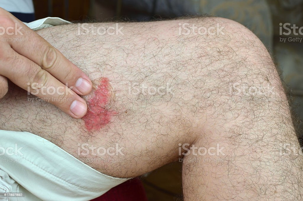 Applying Gel on Skin stock photo