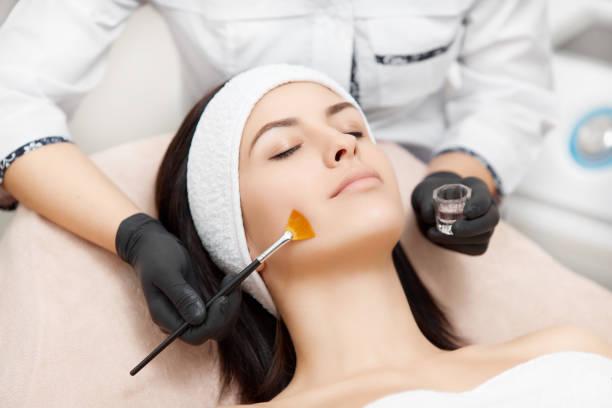 Applying of peeling anti-acne mask on face stock photo