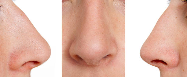 Aquiline nose stock photo