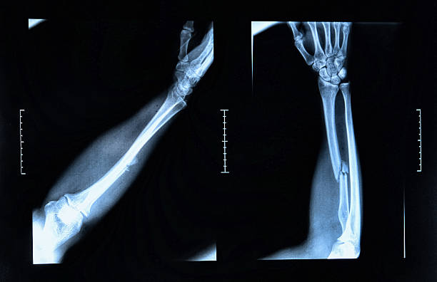 Arm fracture seen on x-ray stock photo