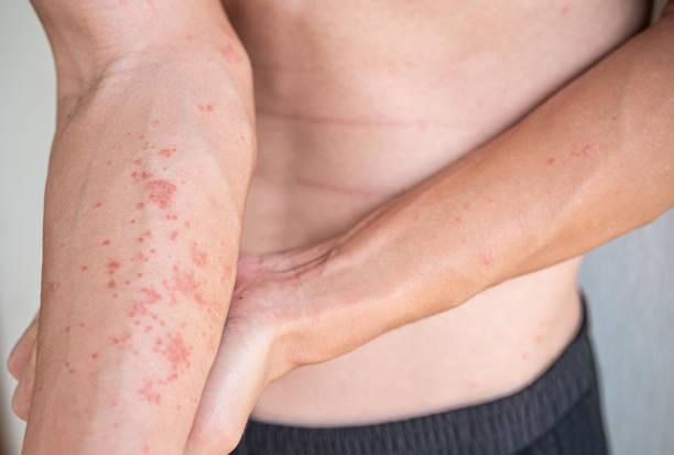 Arm of a man showing skin Atopic dermatitis dry skin problem around body stock photo
