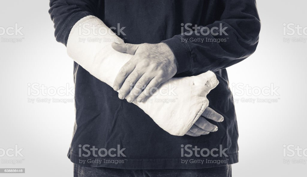 Arm plaster / fiberglass cast  with the thumb extended stock photo