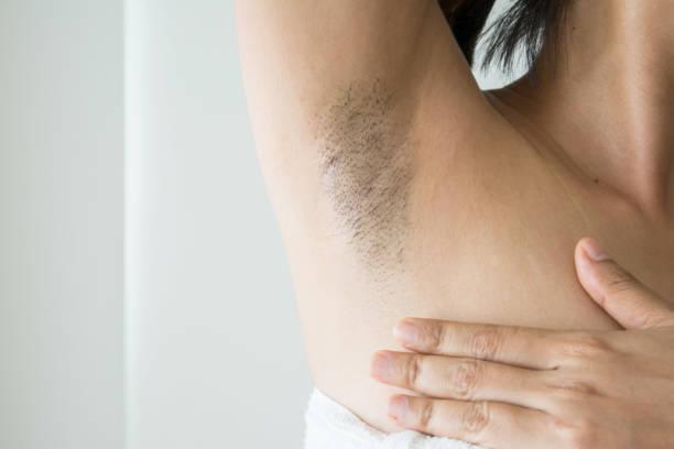 Armpit and armpit hair of Asian women on white background stock photo
