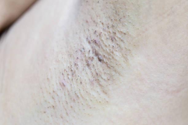 armpit hair dirty. stock photo