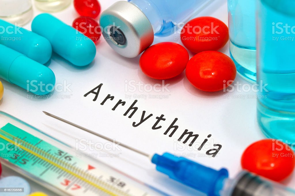 arrhythmia stock photo