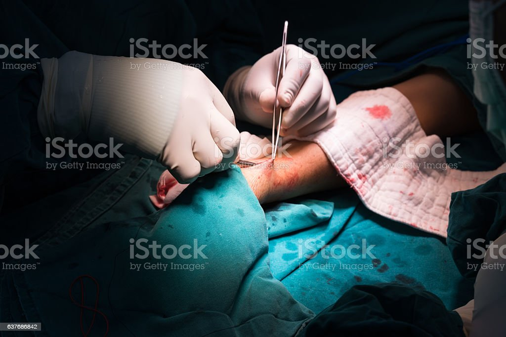 arteriovenous fistula operation stock photo
