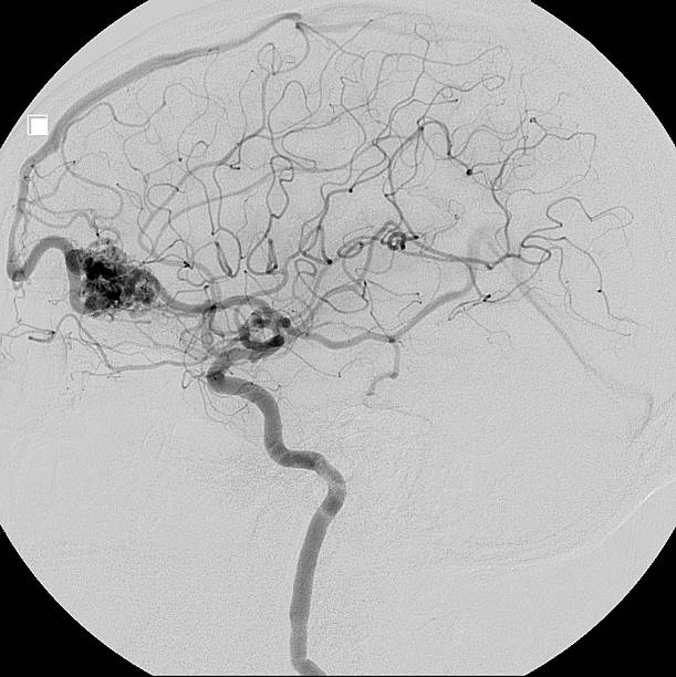 Arteriovenous malformation (AVM) in the brain stock photo