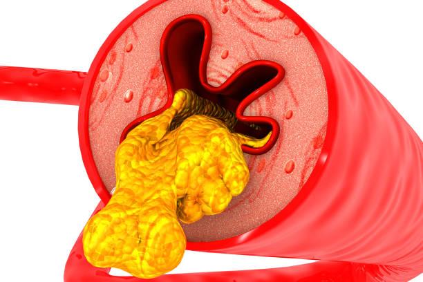 Artery blocked with cholesterol stock photo