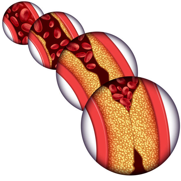 Artery Disease Diagram Artery disease coronary illness as a medical concept with gradual plaque formation resulting in clogged arteries and atherosclerosis with a human anatomy diagram with 3D elements. cholesterol stock pictures, royalty-free photos & images