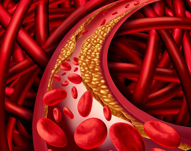 Artery Disease stock photo
