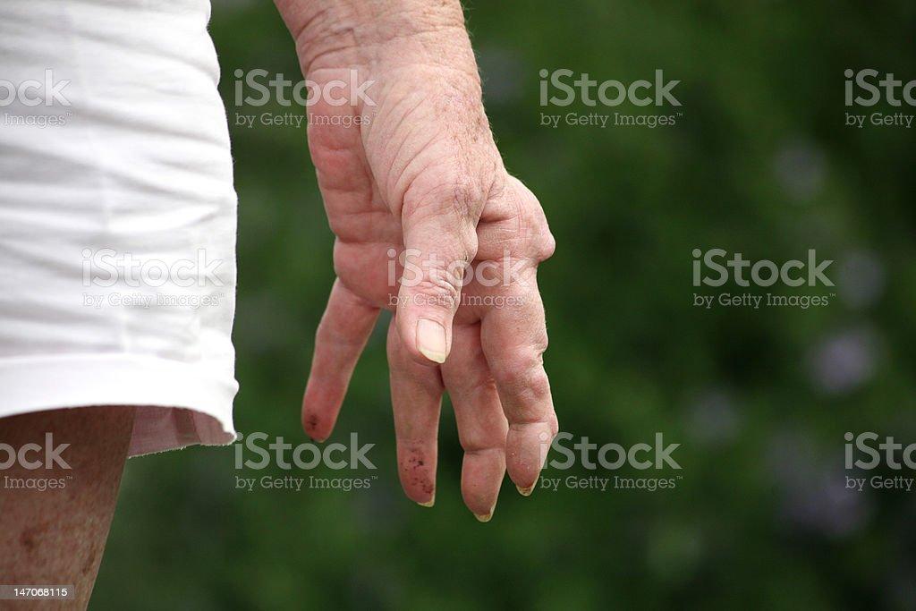 Arthritic hand royalty-free stock photo