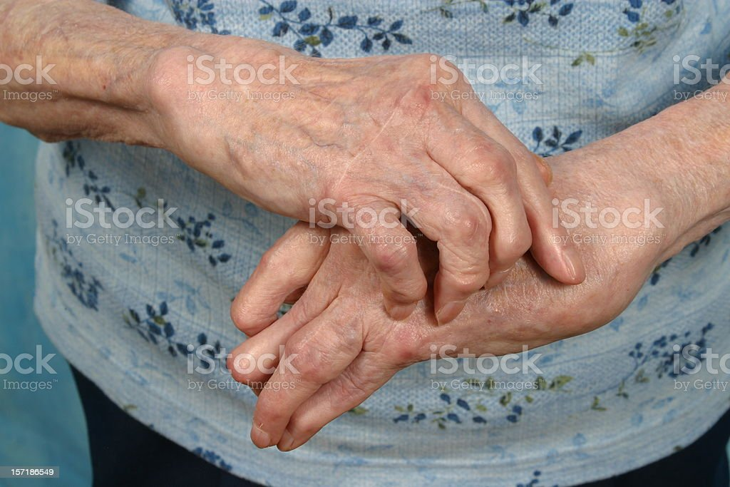 Arthritic Hands- Front, Arthritis Rheumatism stock photo