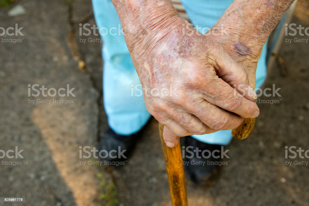 Arthritic Hands resting on cane. Viewed looking down at hands stock photo