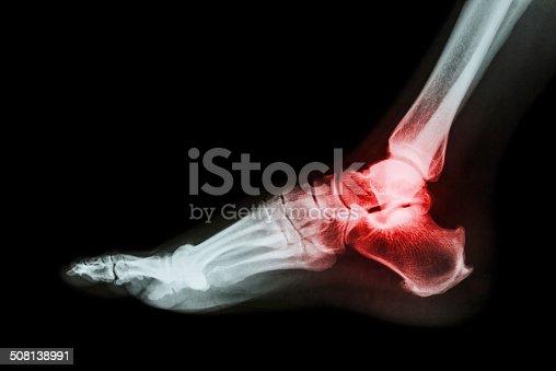 istock Arthritis at ankle joint (Gout , Rheumatoid arthritis) 508138991