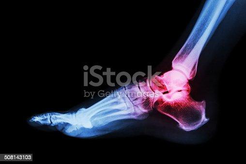 istock Arthritis at ankle joint (Gout , Rheumatoid arthritis) 508143103