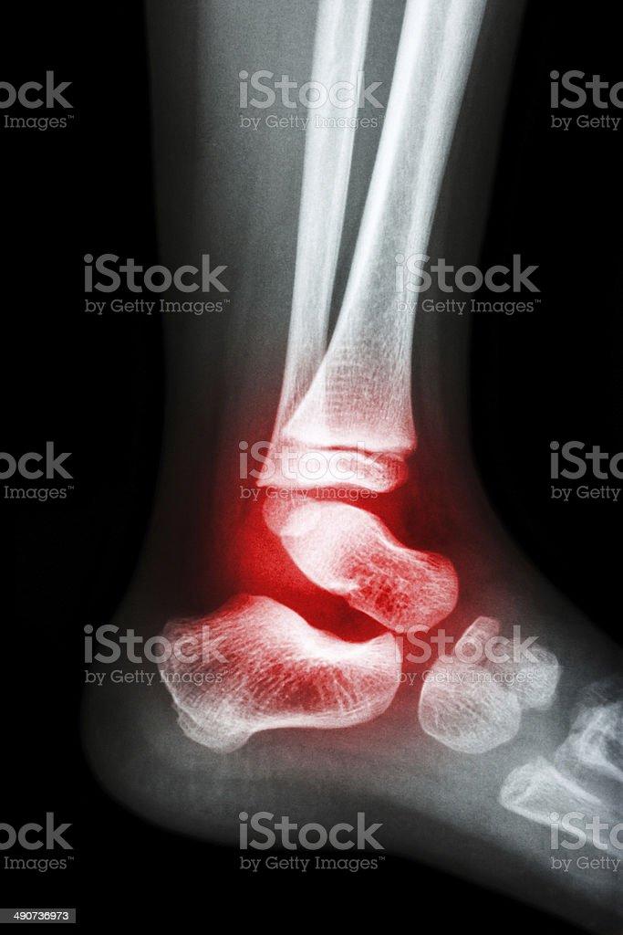 Artrite reumatoide alla caviglia () - Foto stock royalty-free di Anatomia umana