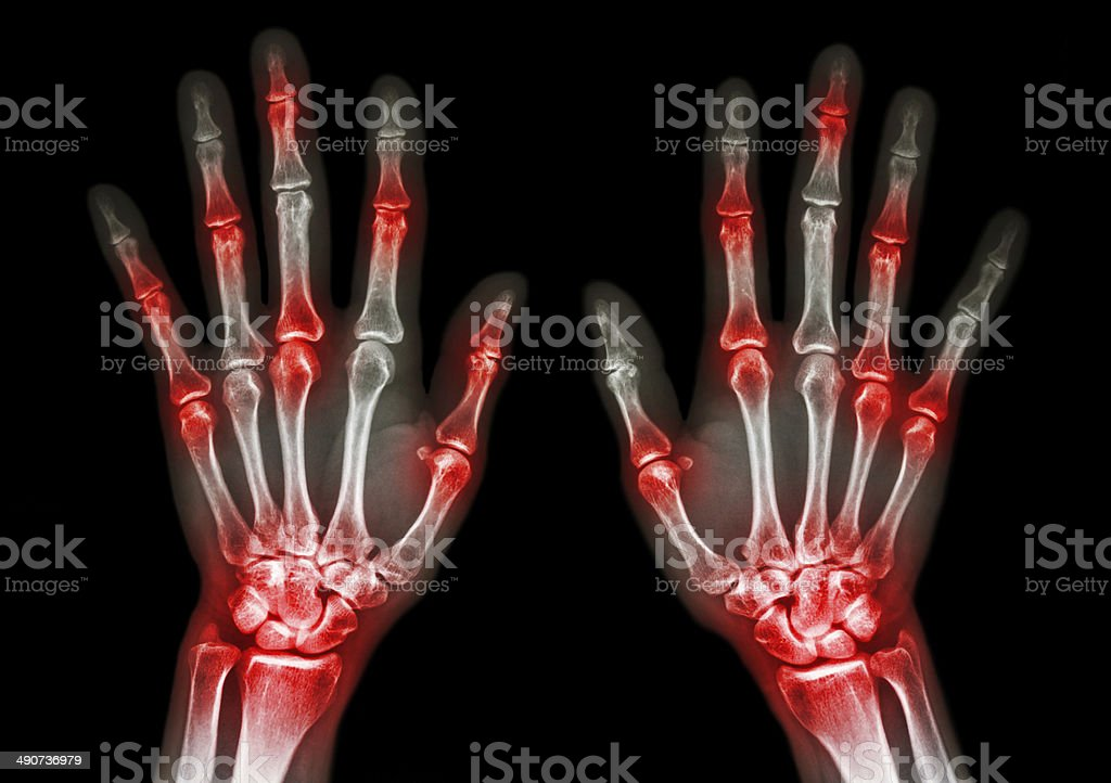 arthritis at multiple joint of hand (Gout,Rheumatoid) stock photo