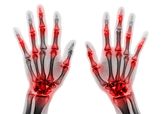 Arthritis multiple joint of fingers . Film x-ray of both hands and wrists . Arthritis multiple joint of fingers . Film x-ray of both hands and wrists . gout stock pictures, royalty-free photos & images