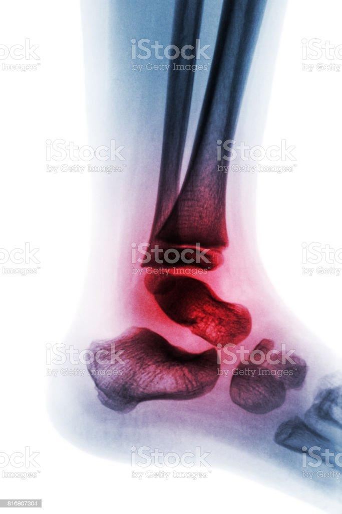 Arthritis of ankle ( Juvenile rheumatoid ) . stock photo