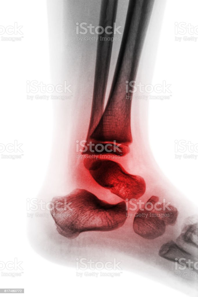 Arthritis of ankle ( Juvenile rheumatoid ) stock photo