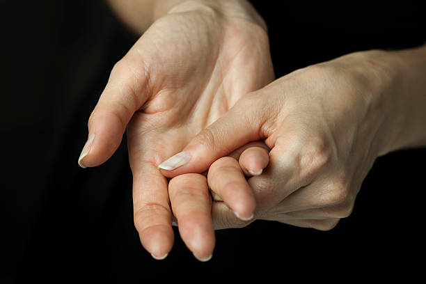 Arthritis pain in hands stock photo
