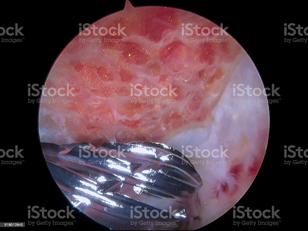 Arthroscopic subacromial decompression of shoulder stock photo