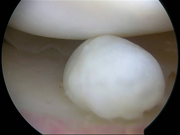 Arthroscopic view of a loose body in medial knee compartment Arthroscopic view of a loose body (corpus liberum articuli) in the the medial compartment of the right knee causing pain and catching. surgery stock pictures, royalty-free photos & images