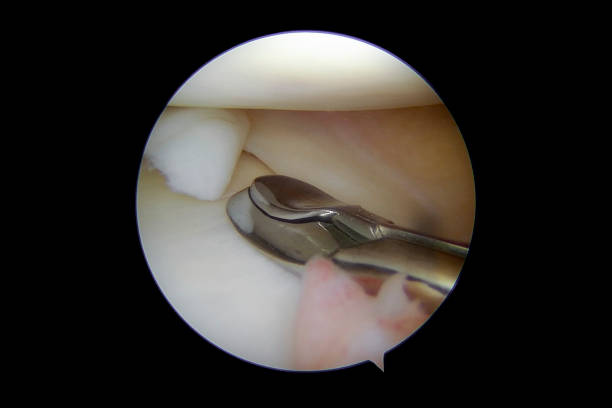 """Arthroscopic view of a meniscal tear of the medial compartment of the right knee Arthroscopic view of a meniscal tear of the medial compartment of the right knee. The tear of the central and posterior part of the medial meniscus, has resulted in a loose flap (posterior of the rupture). The flap tends to move into the center of the joint and results in pain, swelling, popping, and giving way. Many patients describe the condition as """"walking with a pebble/small piece of rock inside the shoe"""". When a meniscal tear causes little trouble, it can be left alone untreated. Otherwise, the flap should be removed by arthroscopic surgery as meniscal tears never heal. The image was captured as a blunt nose oval basket punch has been introduced into the joint and is approaching the loose meniscal flap to take the first bite of a partial meniscectomy. The oval (shape of the) punch enables flush contouring of meniscus. surgery stock pictures, royalty-free photos & images"""